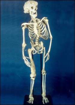 "The skeleton of Joseph Merrick, the ""Elephant Man"", as kept in the collection of the Royal London Hospital."