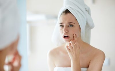 Blackheads Are So Annoying! How To Treat Your Breakouts Effectively