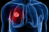 7 Warning Signs Of Lung Cancer Not To Ignore