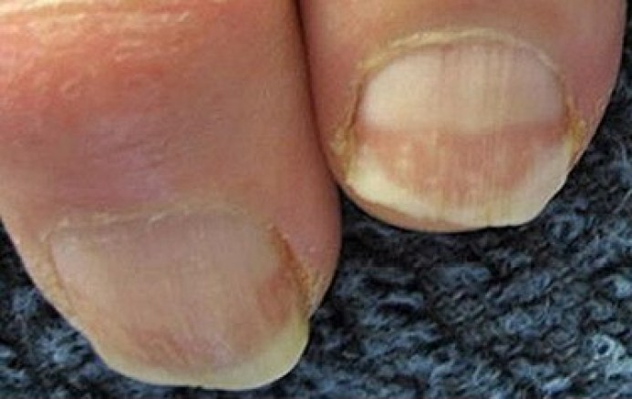 thick-and-dry-toenail