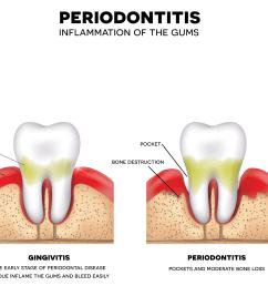 tooth bone diagram [ 4055 x 1846 Pixel ]