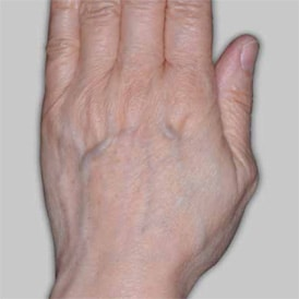 Before-Radiesse for Hands