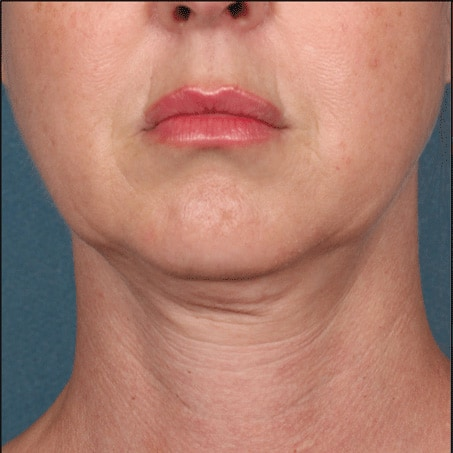 Before- Kybella (Front Views)
