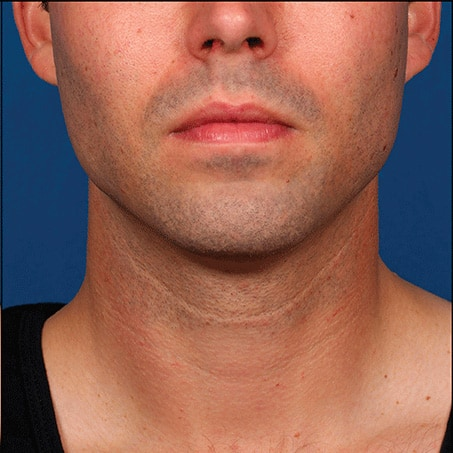 After-Kybella (Front Views)