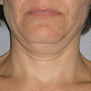 Before-Ultherapy Neck