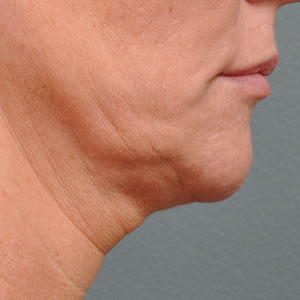 Before-Ultherapy Under Chin