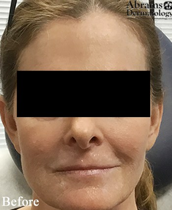 Before-Juvederm Volbella Lip Injection