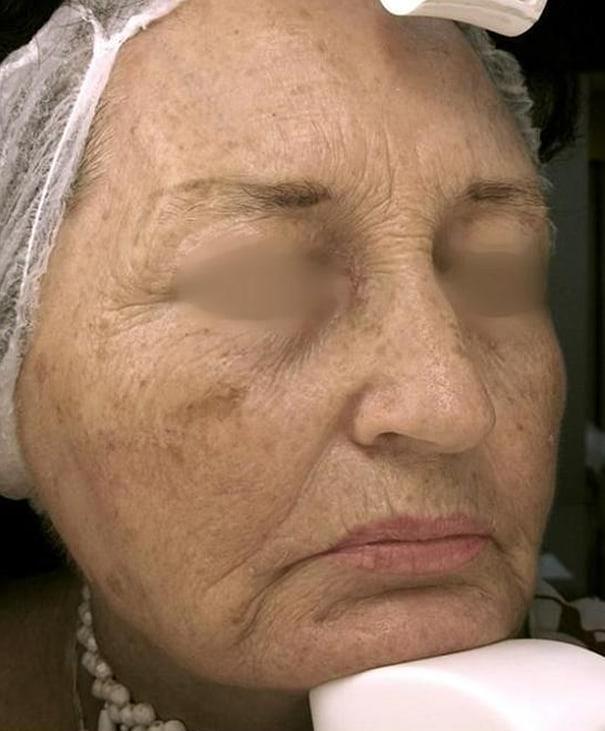 Before- Fractional Skin Resurfacing