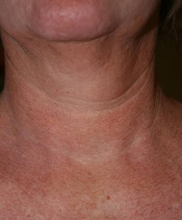Before- Fractional Skin Resurfacing