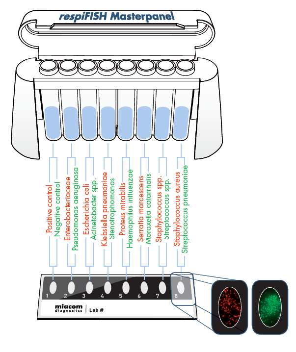 Respifish test panel showing all the bacteria that can be rapidly identified in 30 minutes direct from a sputum sample.