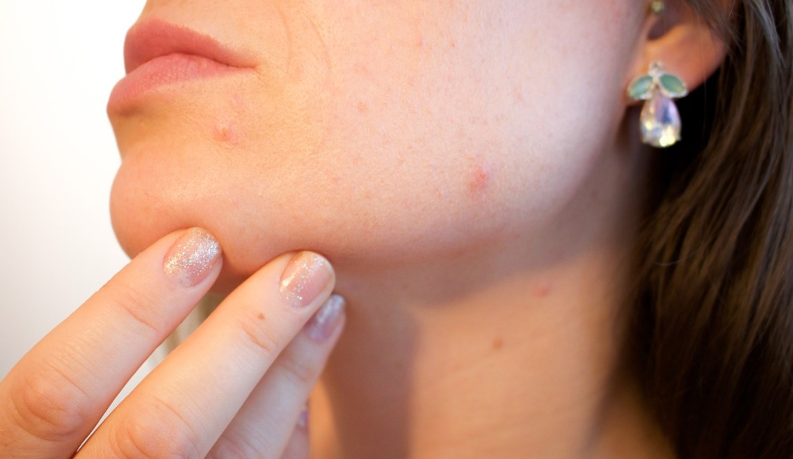 Beauty Blemishes You Don't Have To Be Embarrassed By Anymore | Beauty