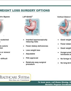 If you are considering weight loss also bariatric surgery lap band gastric sleeve obesity bmi rh absspecialists