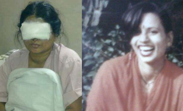 Anu Mukerjee, the acid attack survivor (on the right before the attack) Photo: From her facebook community