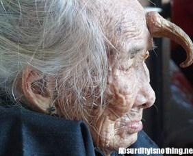 Corno sulla fronte di un'anziana cinese