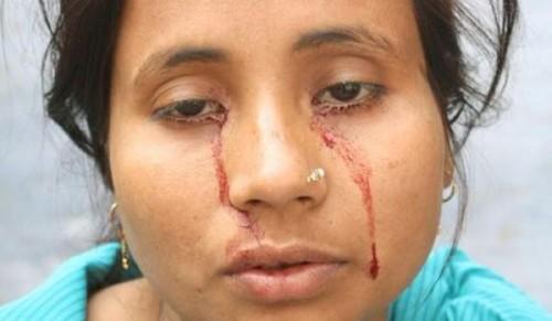 Rashida Khatoon - La donne che piange sangue
