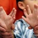 Il Bambino Cinese con 31 dita