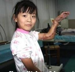 La bimba con la mano attaccata alla gamba è stata operata