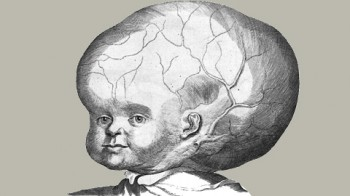 Klaus il bimbo alieno con la testa enorme