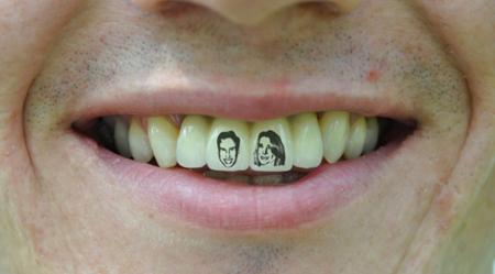 Tautaggio reale ai denti