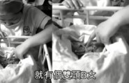 Bimba nata con due teste in Cina (1)