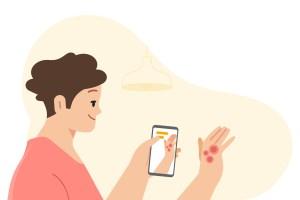 جوجل والأمراض الجلدية