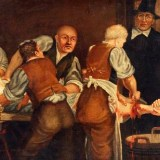 Deadly Facts About Victorian Surgery