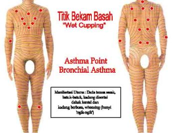 wet-cupping-asthma.jpg