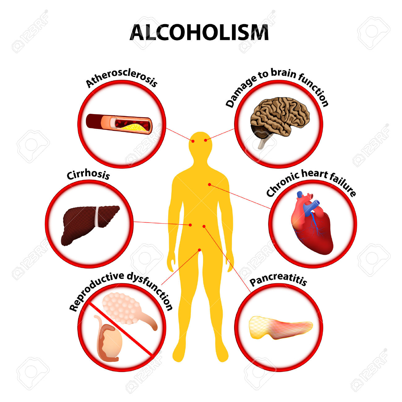 Alcohol Health Problems And Symptoms Of Use