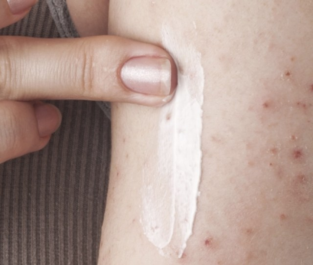 Study Shows Painful Eczema Symptoms Negatively Impact Quality Of Life