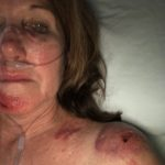 Kerrie Molloy at Mount Desert Hospital with some of the injuries she suffered after a hiking accident