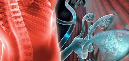 El síndrome miastenico Lambert Eaton obtiene el primer tratamiento aprobado por la FDA