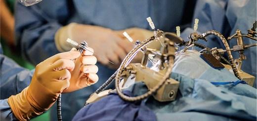 Operación de trasplante le da a los adolescentes con enfermedad de Wilson una segunda oportunidad
