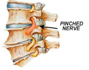 Pinched nerves caused by auto accidents