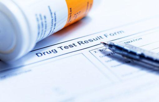 Random drug testing