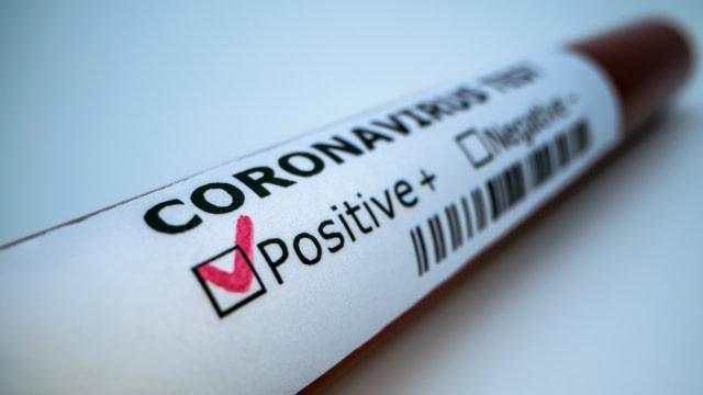 ilustrasi virus corona covid-19