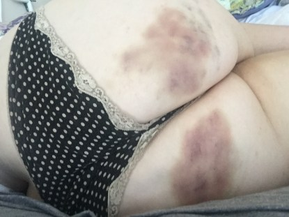 These bruises are SO great.