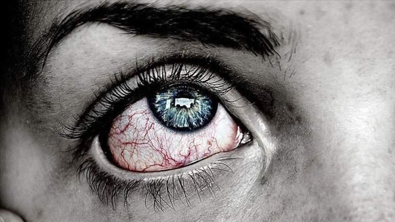 هكذا يؤثر (كوفيد ـ19) على صحة العين