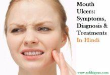 मुंह के छाले दूर करने के घरेलू उपाय | Muh Ke Chhale Kaise Thik Kare