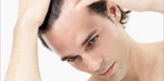 गंजापन दूर करने का घरेलु नुस्खा   Hair Loss Home Remedies In Hindi