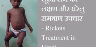 सूखा रोग का लक्षण और घरेलु रामबाण उपचार   Sukha Rog ka Upchar in Hindi