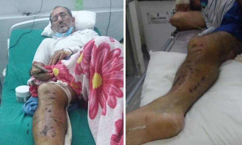 """Com a perna quebrada e sem atendimento, família diz que paciente """"está de favor"""" no PS"""