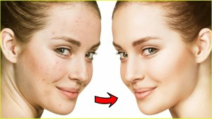 maxresdefault 70 300x169 - Discover How To Cure Acne