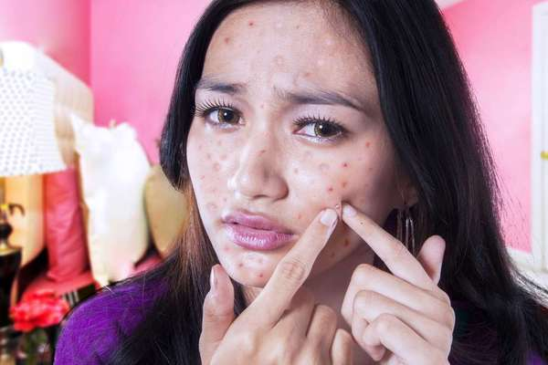 How to use aloe vera for acne scars