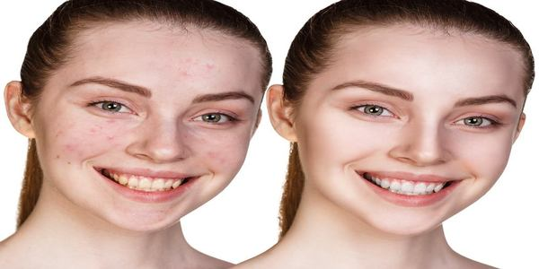 how to use green tea for acne
