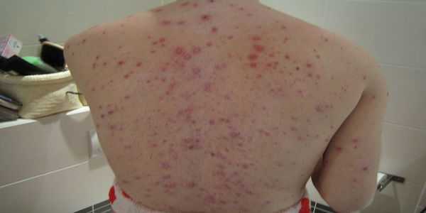 How to Get Rid of Back Acne Overnight [Home Remedies]