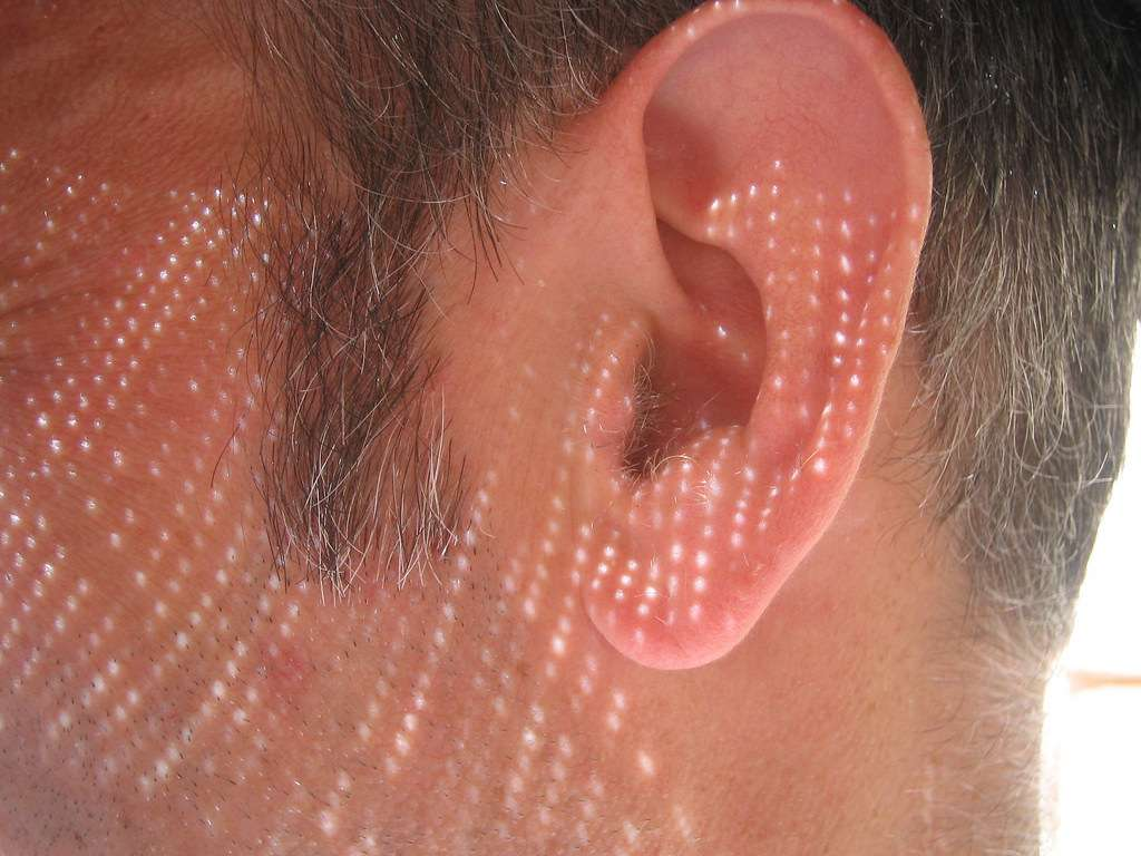 Exfoliation for black head in ear