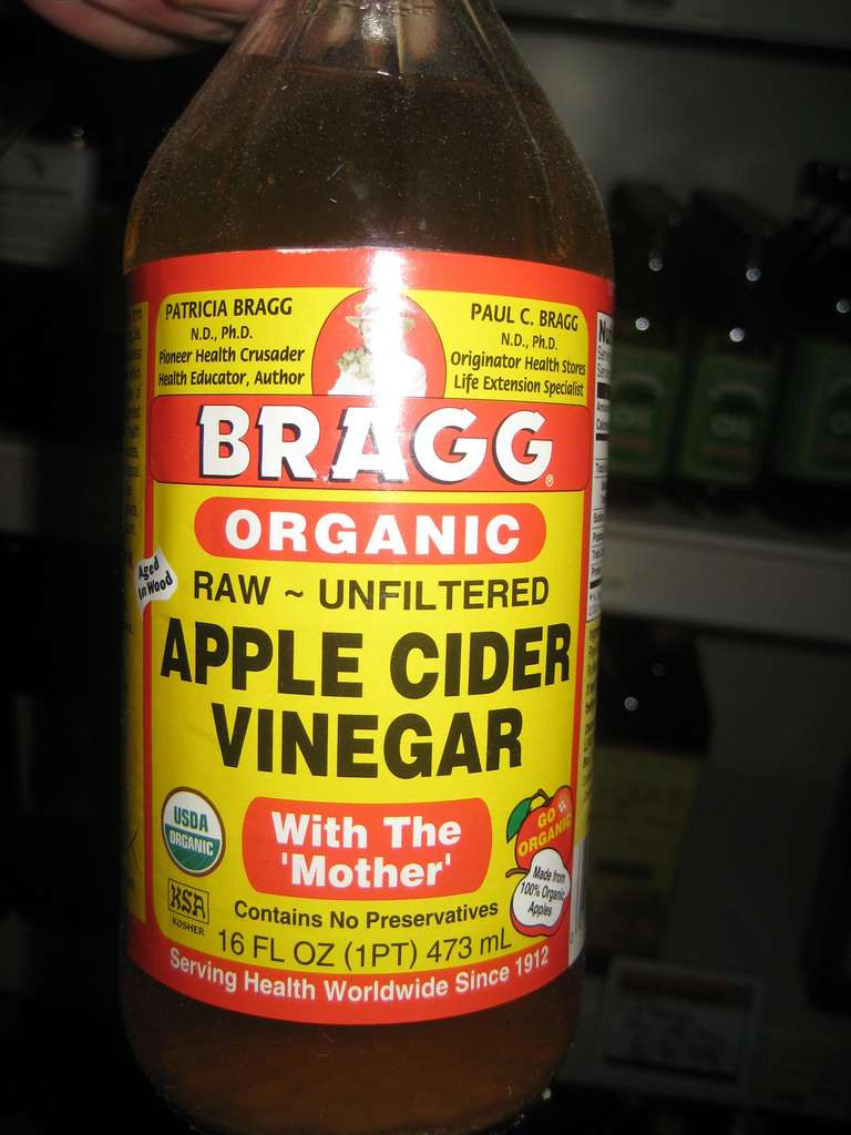 apple cider vinegar for whiteheads