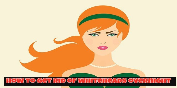 How to Get Rid of Whiteheads Overnight at Home [10 Home Remedies]