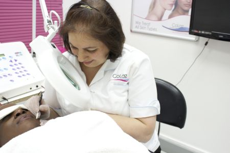 laser treatment for cheek acne