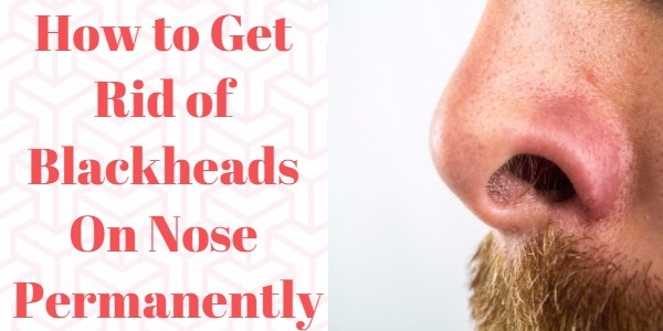 How to Get Rid of Blackheads On Nose Permanently